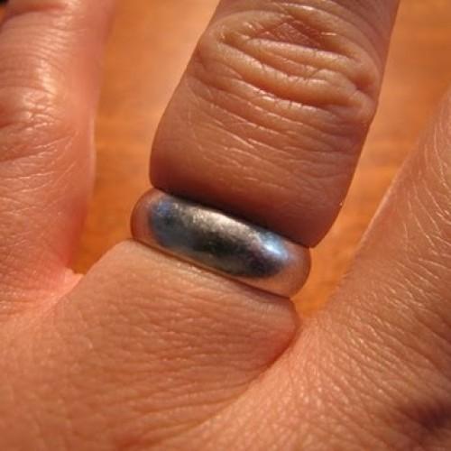 كذا تسوي اذا نشب الخاتم في اصبعك